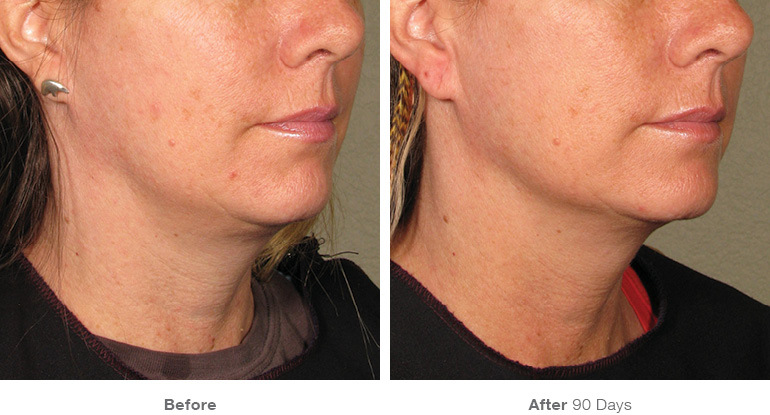 before_after_ultherapy_results_under-chin11