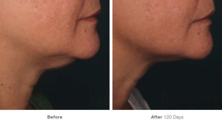 before_after_ultherapy_results_under-chin1