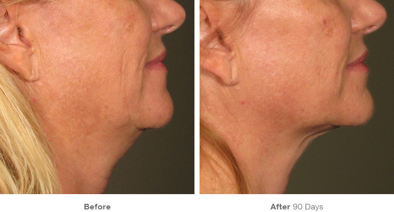 before_after_ultherapy_results_under-chin30