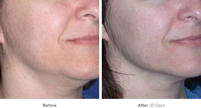 before_after_ultherapy_results_under-chin31